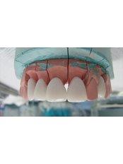Temporary Crown - Cosmetic Dentist in Nuevo Progreso Dental Artistry