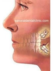 Surgical Extractions - Cosmetic Dentist in Nuevo Progreso Dental Artistry