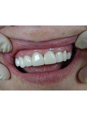 Veneers - Cosmetic Dentist in Nuevo Progreso Dental Artistry