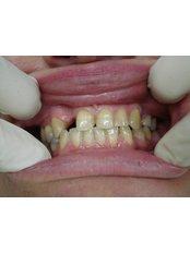 Porcelain Crown - Cosmetic Dentist in Nuevo Progreso Dental Artistry