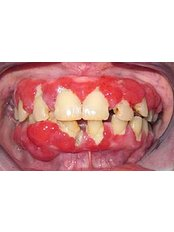 Periodontitis Treatment - Cosmetic Dentist in Nuevo Progreso Dental Artistry