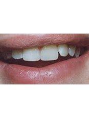 Dental Bonding - DDS Luis Ochoa Hernandez