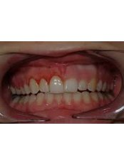 Gum Contouring and Reshaping - DDS Luis Ochoa Hernandez