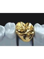 Gold Crown - DDS Luis Ochoa Hernandez