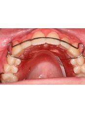 Orthodontic Retainer - DDS Luis Ochoa Hernandez