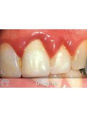 Gingivitis Treatment - DDS Luis Ochoa Hernandez