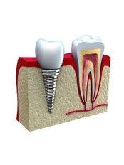 Immediate Implant Placement - DDS Luis Ochoa Hernandez