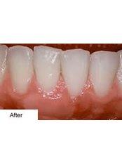 Gum Surgery - DDS Luis Ochoa Hernandez