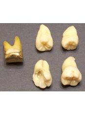 Wisdom Tooth Extraction - DDS Luis Ochoa Hernandez