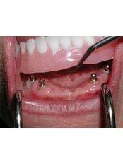 Dental Implants - DDS Luis Ochoa Hernandez