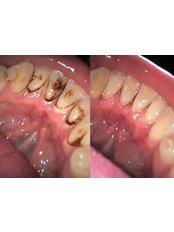 Teeth Cleaning - DDS Luis Ochoa Hernandez