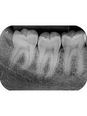 Dental X-Ray - Dr Luis Gustavo Martinez Office