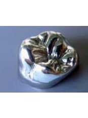 Stainless Steel Crown - Dr Luis Gustavo Martinez Office