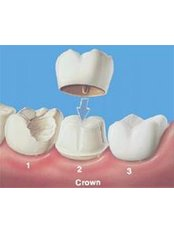 Restorative Dentist Consultation - Dra. Luz Marely García Alvarez