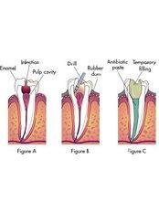 endodontics consultation - Dra. Luz Marely García Alvarez