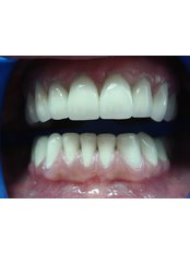 Veneers - Eagle Dental Clinic (extreme makeovers)