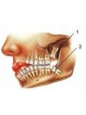 Wisdom Tooth Extraction - Eagle Dental Clinic (extreme makeovers)