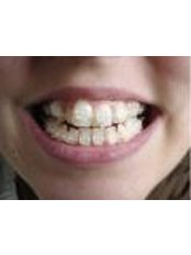 Braces - Eagle Dental Clinic (extreme makeovers)
