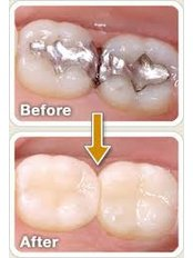 veneers - Munoz Dental Care