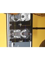 Digital Panoramic Dental X-Ray - Stetic Implant and Dental Centers