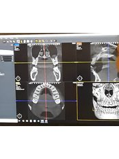 3D Dental X-Ray - Stetic Implant and Dental Centers