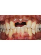 Dental Implant - Texas Dental Clinic
