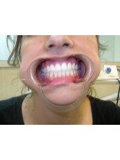 Zirconia Crown - Texas Dental Clinic