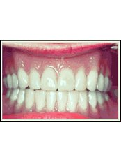 Dentures - Texas Dental Clinic