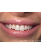 Porcelain Veneers - Texas Dental Clinic