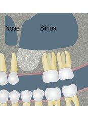 Sinus Lift - Texas Dental Clinic