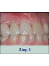 Crown over implants - Texas Dental Clinic