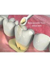 Bone Graft  - Texas Dental Clinic