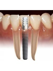 Dental Implants - Clínica Dental Plaza Marina