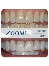 Zoom! Teeth Whitening - Clínica Dental Plaza Marina