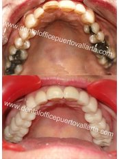 Fillings - Dental Office Puerto Vallarta