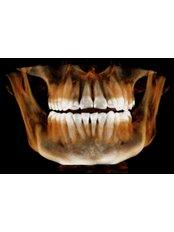 3D Dental X-Ray - Dentoamerica - Puerto Vallarta