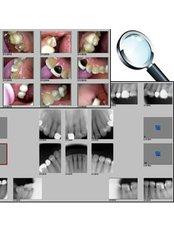 Dental Exam (with Xrays/Photos) - Dentoamerica - Puerto Vallarta