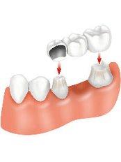 Permanent Bridge - International Dental Center PV