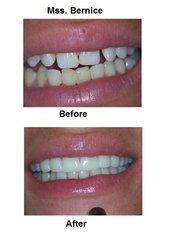 Porcelain Veneers - International Dental Center PV