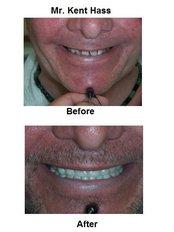 Dental Crowns - International Dental Center PV
