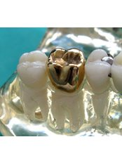 Gold Crown - International Dental Center PV