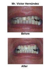 Veneers - International Dental Center PV