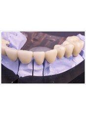 Temporary Bridge - International Dental Center PV