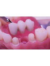Porcelain Bridge - International Dental Center PV