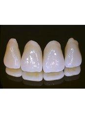 Dental Crowns - PV Smile Dental Clinic