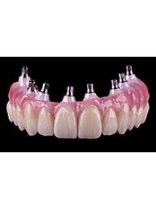 Dental Implants - PV Smile Dental Clinic