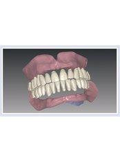 Immediate Dentures - PV Smile Dental Clinic