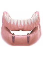 Full Dentures - PV Smile Dental Clinic