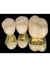 Dental Bridges - PV Smile Dental Clinic