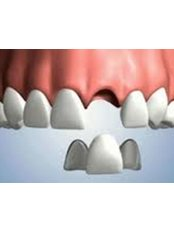 Deep Cleaning, Scaling - 757 Dental Solutions